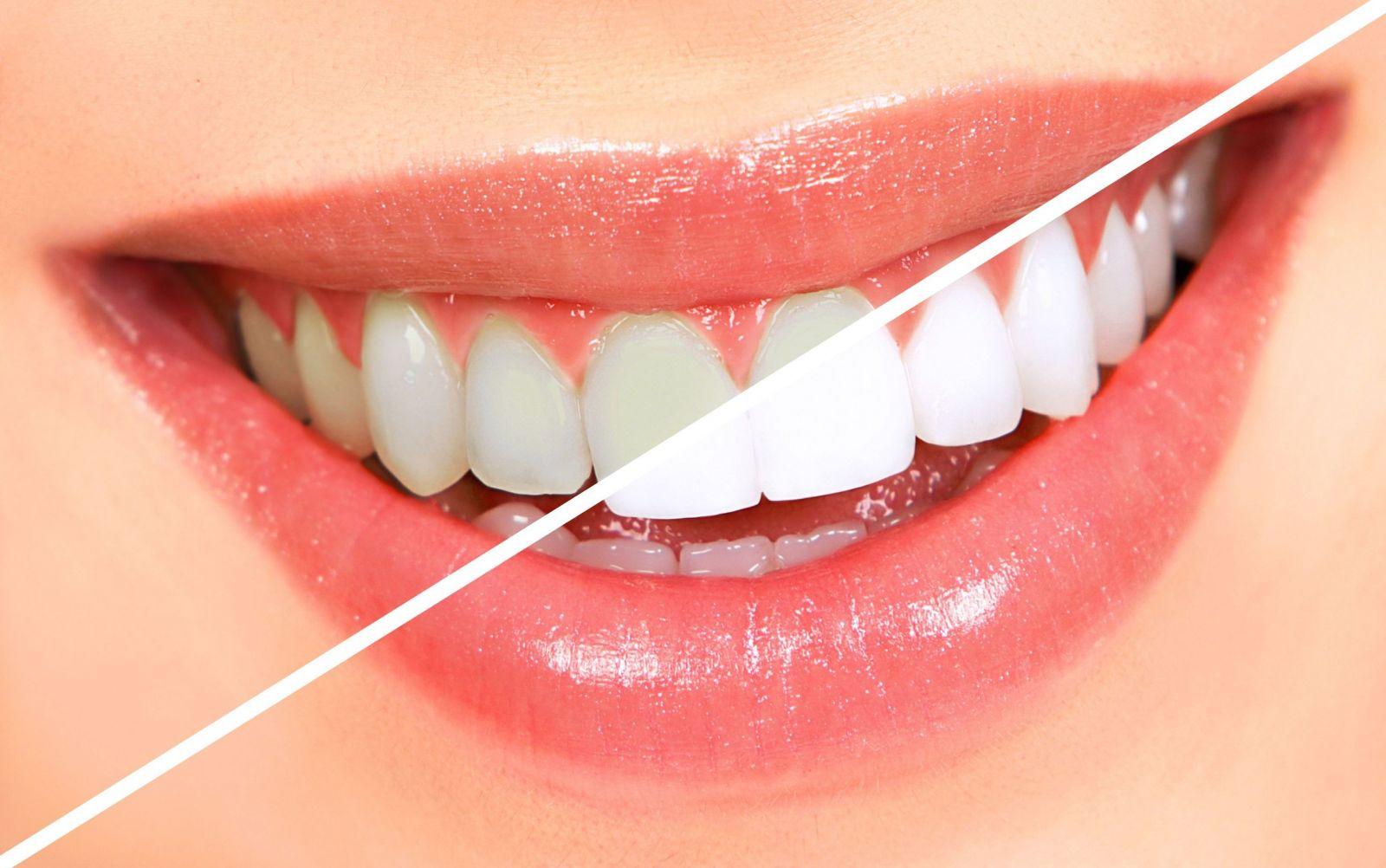 Быстро отбелить зубы в домашних условиях
